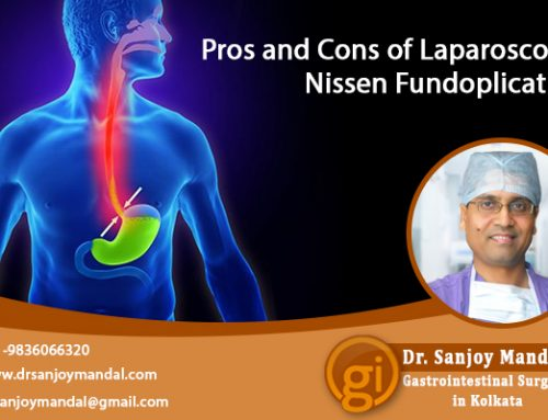 Gastro Surgeon Explains the Pros and Cons of Lap Nissen Fundoplication
